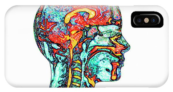Neurology iPhone Case - Brain And Spinal Cord by Mehau Kulyk