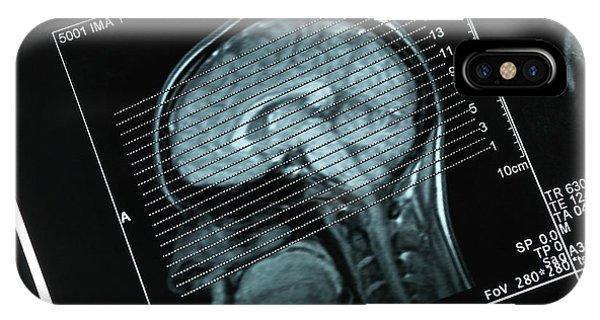 Brain Scan iPhone X Case - Mri Brain Scans by Tek Image