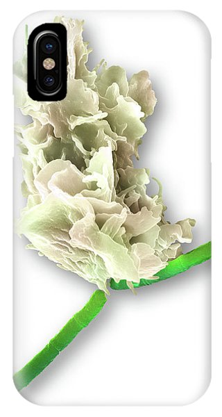 Neutrophil Engulfing Anthrax Bacteria Phone Case by Science Photo Library