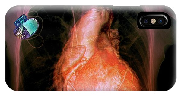Pacemaker Phone Case by Zephyr/science Photo Library