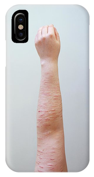 Scarring Caused By Self Harm Phone Case by Joti/science Photo Library