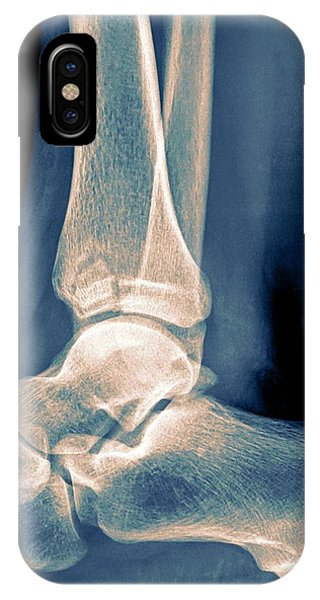 Ankle X-ray Phone Case by Photostock-israel