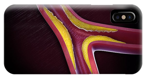 Flow Visualization iPhone Case - Atherosclerosis by Science Picture Co