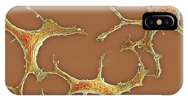 Breast Cancer Cells Phone Case by Science Photo Library