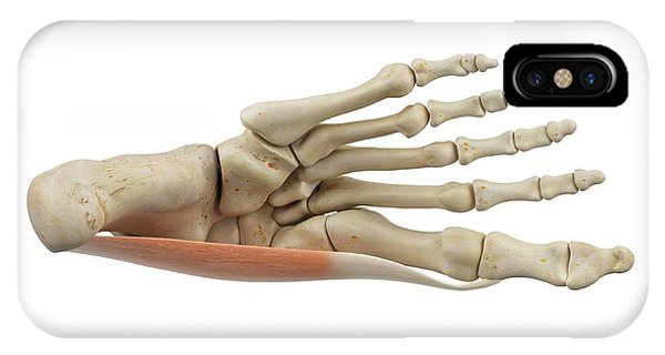 Human Foot Muscles Phone Case by Sciepro