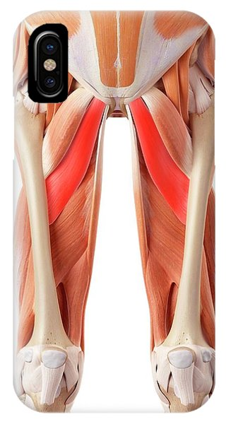 Muscular System Of Legs Phone Case by Sebastian Kaulitzki/science Photo Library