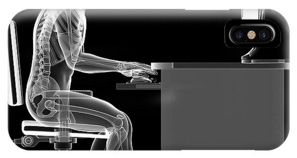 Person Sitting With Incorrect Posture Phone Case by Sebastian Kaulitzki