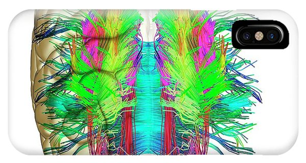 Brain Scan iPhone X Case - White Matter Fibres And Brain by Alfred Pasieka