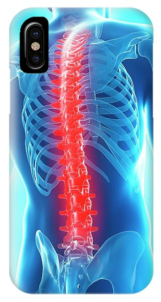 Back Pain Phone Case by Sciepro/science Photo Library