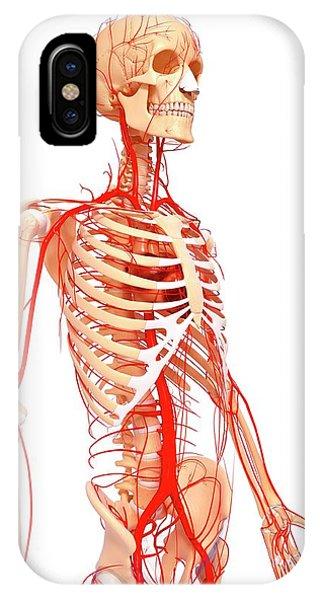 Human Arteries Phone Case by Pixologicstudio/science Photo Library