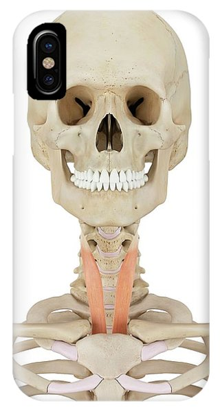 Human Neck Muscles Phone Case by Sciepro
