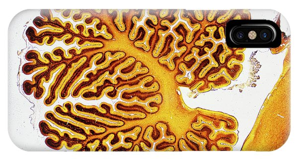 Neurology iPhone Case - Brain Tissue by Innerspace Imaging/science Photo Library