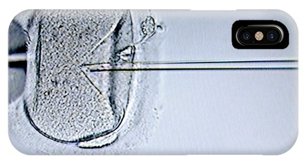 Ivf Treatment Phone Case by Aj Photo/science Photo Library