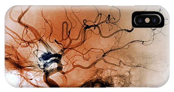 Cerebral Aneurysm Phone Case by Zephyr/science Photo Library