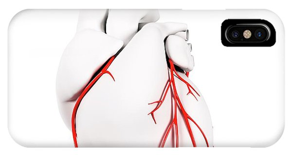 Coronary Arteries Phone Case by Sciepro/science Photo Library