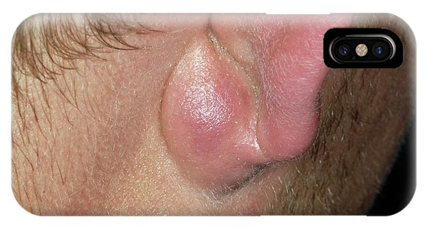 Infected Sebaceous Cyst Phone Case by Dr P. Marazzi/science Photo Library