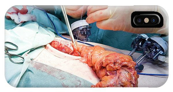 Laparoscopic Colon Cancer Surgery Phone Case by Dr P. Marazzi/science Photo Library
