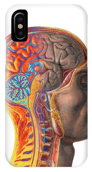 Brain Scan iPhone X Case - Brain by Alfred Pasieka