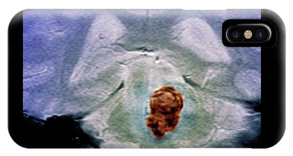 Brain Haemorrhage Phone Case by Zephyr