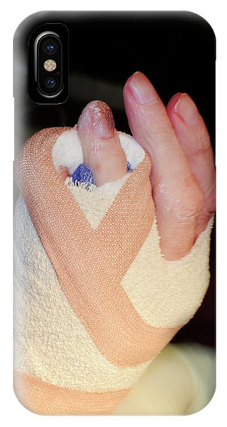 Dupuytren's Contracture Surgery Phone Case by Dr P. Marazzi/science Photo Library