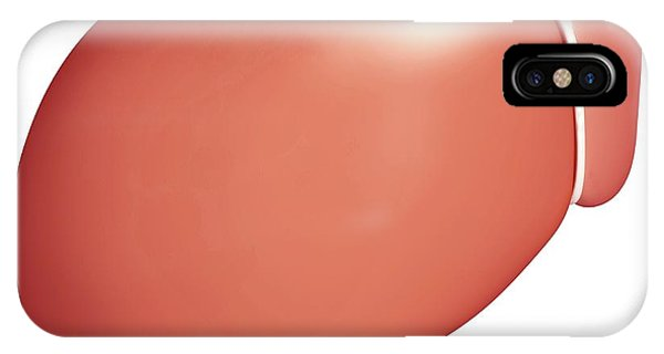 Healthy Liver Phone Case by Pixologicstudio/science Photo Library