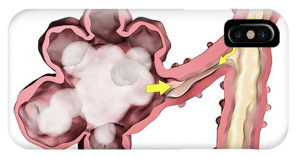 Cutout iPhone Case - Alveoli In Emphysema by Gunilla Elam