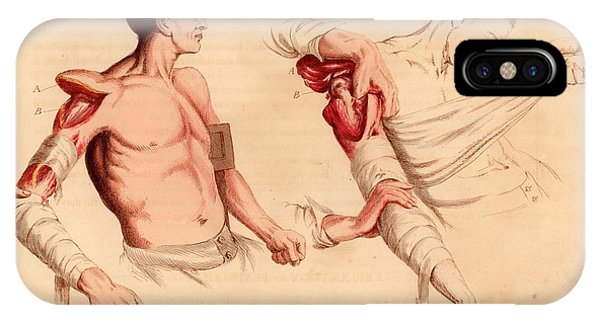 Left iPhone Case - Amputation Of The Arm At The Shoulder by Universal History Archive/uig