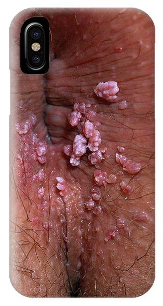 Do anal warts bleed