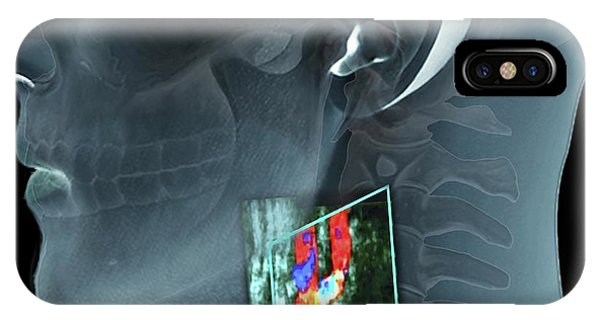 Alcoholism iPhone Case - Atherosclerosis Of The Carotid Artery by Zephyr