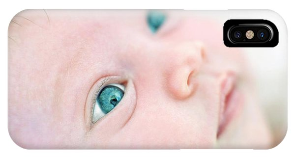 0 iPhone Case - Baby Girl by Ian Hooton/science Photo Library