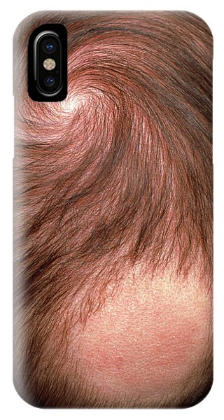 Bald Patch On The Back Of 3 Month Old Baby's Head Phone Case by Pascal Goetgheluck/science Photo Library