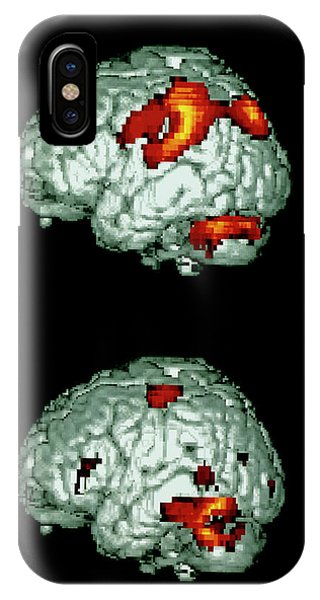 Neurology iPhone Case - Brain Activity Reading Braille by Wellcome Dept. Of Cognitive Neurology/ Science Photo Library