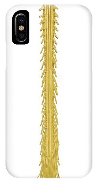 Neurology iPhone Case - Brain And Spinal Cord by Bo Veisland/science Photo Library
