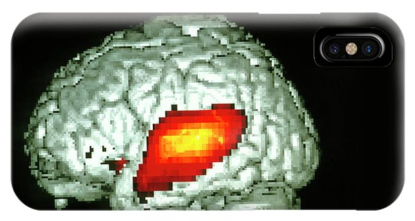Neurology iPhone Case - Brain Hearing Sound by Wellcome Dept. Of Cognitive Neurology/ Science Photo Library