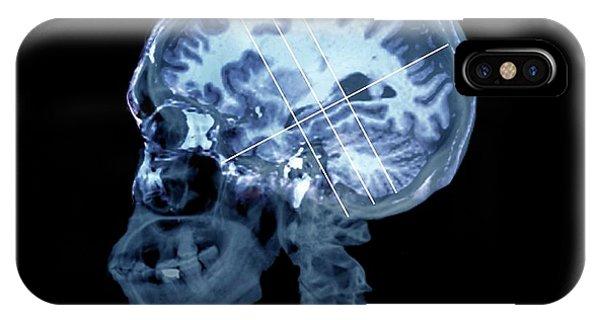 Neurology iPhone Case - Brain In Alzheimer's Disease by Zephyr
