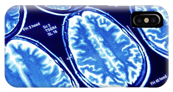 Brain Scan iPhone X Case - Brain Scans by Pasieka