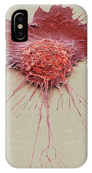 Bronchial Epithelium Phone Case by Steve Gschmeissner