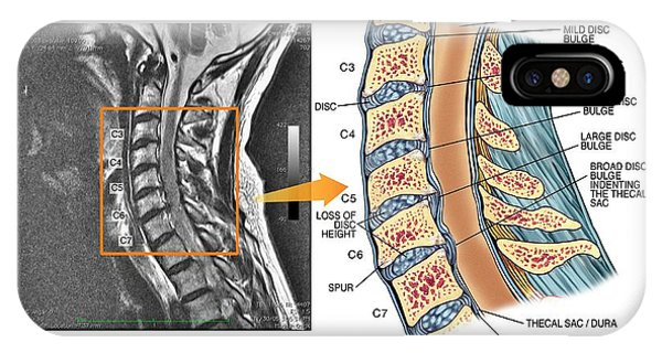 Bulging Discs In The Cervical Spine Photograph by John T. Alesi