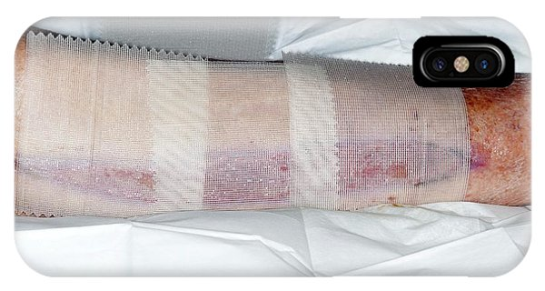 Dressing iPhone Case - Calf Fasciotomy After Artery Surgery by Dr P. Marazzi/science Photo Library