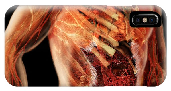 Flow Visualization iPhone Case - Cardiovascular System, Male Torso by Anatomical Travelogue