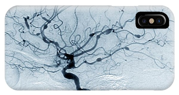 Cerebral Aneurysms In Lupus Phone Case by Zephyr/science Photo Library