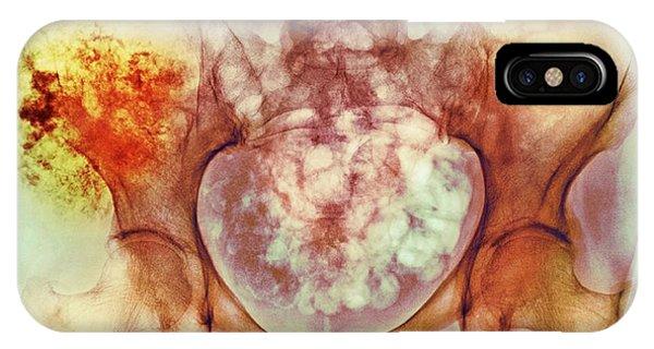 Chondrosarcoma IPhone Case