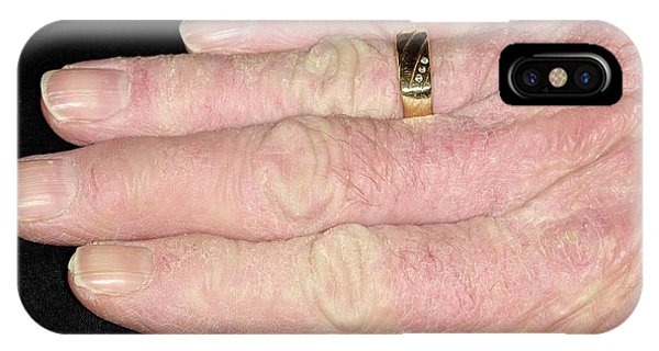 Chronic iPhone Case - Chronic Eczema On The Hands by Dr P. Marazzi/science Photo Library