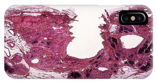 Chronic iPhone Case - Chronic Pancreatitis by Cnri