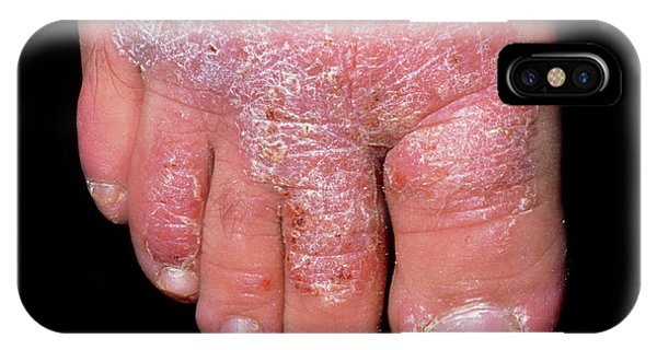 Chronic iPhone Case - Chronic Plaque Psoriasis On The Foot by Dr H.c.robinson / Science Photo Library