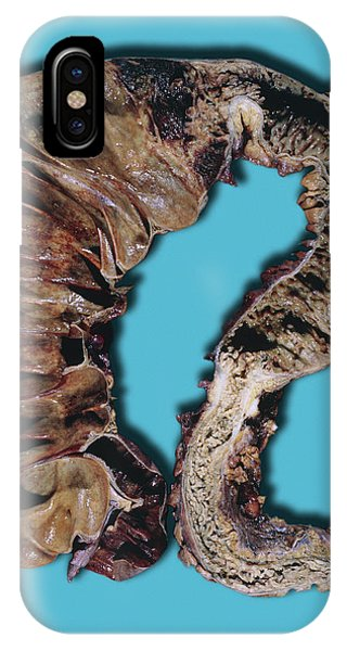 Chronic iPhone Case - Chronic Ulcerative Colitis by Medimage/science Photo Library