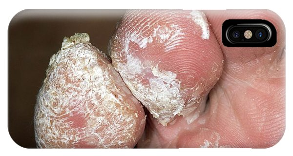Chronic iPhone Case - Chronic Warts On The Toes by Dr P. Marazzi/science Photo Library