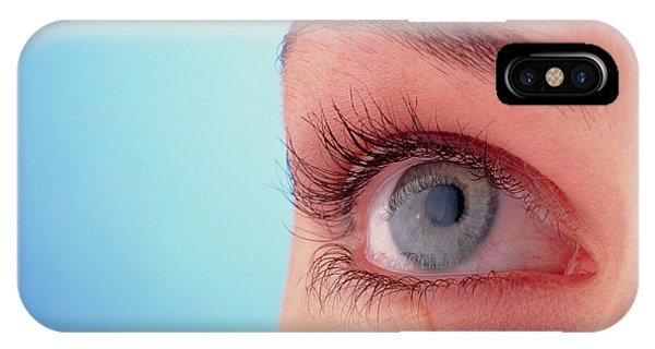 Close-up Of A Woman's Blue Eye With A Tear-drop Phone Case by Phil Jude/science Photo Library