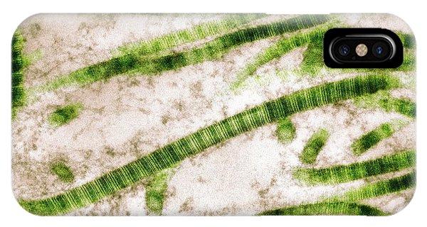 Tissue iPhone Case - Collagen Fibrils by Nibsc