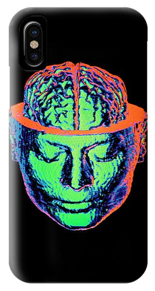 Brain Scan iPhone X Case - Coloured 3-d Ct Scan Of Opened Head With Brain by Gjlp/science Photo Library